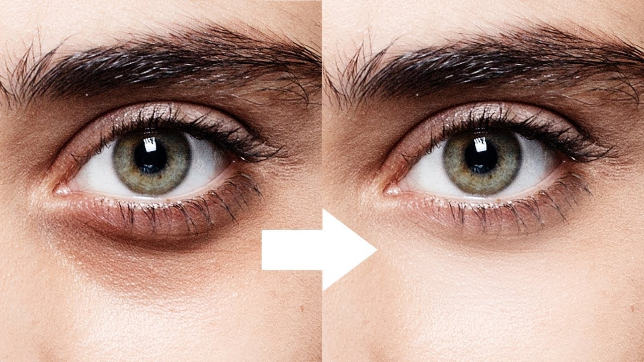 Removing-dark-circles-from-under-the-eyes